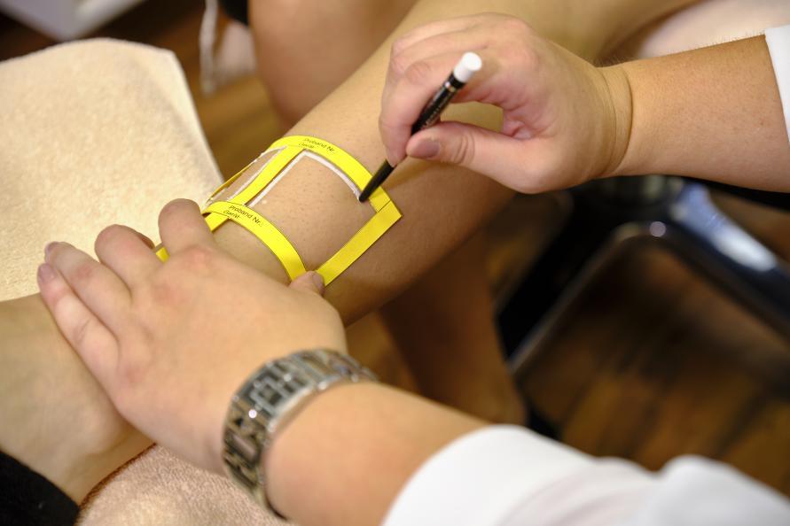 Laboratoriet markerer de seks behandlingsområdene på hvert ben. Foto: Tobias Meyer