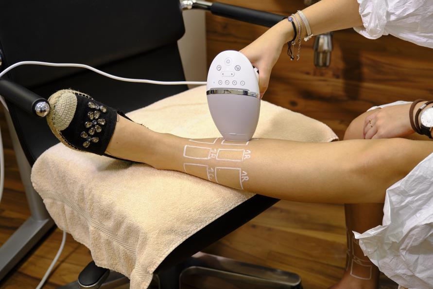 Behandling med et av de testede IPL-apparatene. Foto: Tobias Meyer